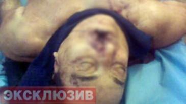 Հնարավոր է, որ  Դեդ Հասանի սպանության արձագանքները նաև հայկական աշխարհում երևան
