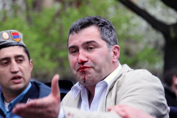 Քաշքշուկից ու ծեծկռտուքից տուժած Արմեն Մարտիրոսյանի լուսանկարը