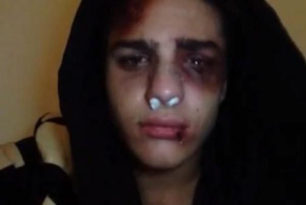 разбитая губа у девушки фото
