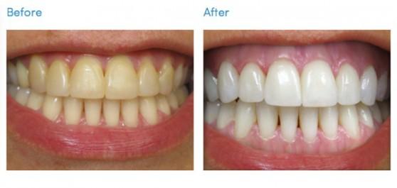 Ինչպե՞ս հեռացնել ատամնաքարերը տնային պայմաններում և ունենալ առողջ ու ձյունաճերմակ ատամներ