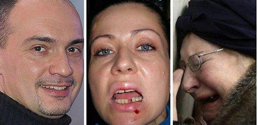 Արտաշատում 26-ամյա տղամարդը ծեծել է քրոջը, խփել է մորը, որ ն....