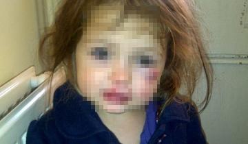 Սյունիքում հայրը խաղալիքը կոտրելու համար ցաքատի կոթով դաժան ծեծի է ենթարկել 6 տարեկան աղջկան